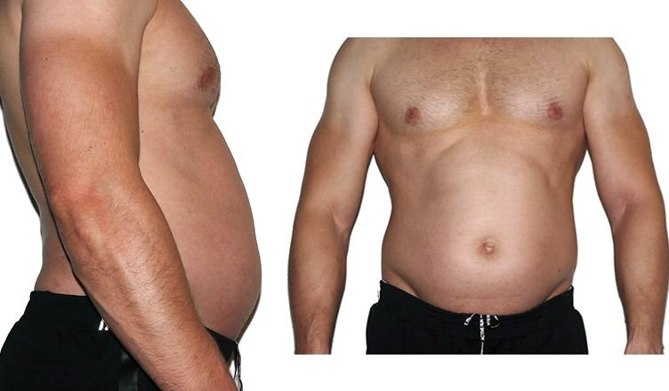 oponka na brzuchu