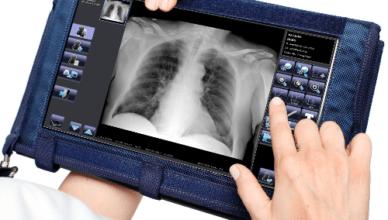 nieinwazyjne badania kardiologiczne